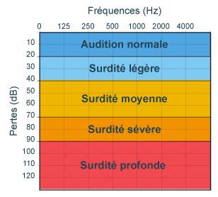 Dépistage des surdités, oto-émissions, PEA, audiogrammes   Cochlea
